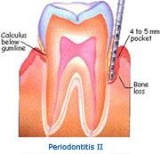 stage_periodontitis