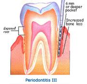 stage_periodontitis3