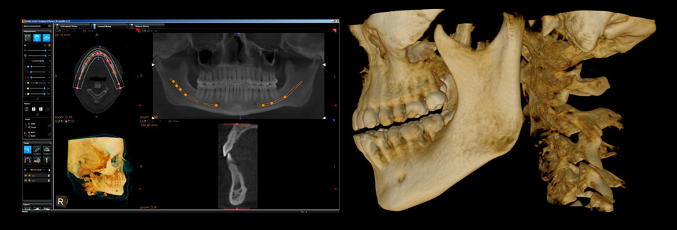 cbct_scan