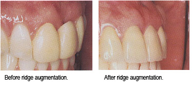 ridge-augmentation